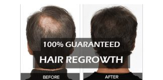 Hair Regrowth Treatment and Supplements